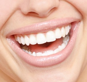 Blanqueamiento estética dental